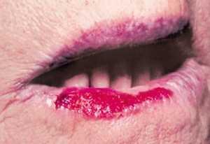 Белый налет на губах у взрослых: причины образования