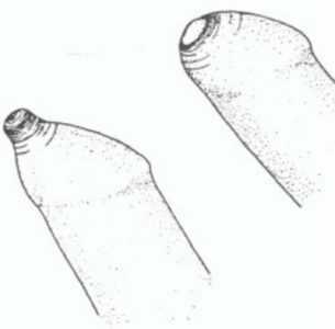 Белая пленка на залупе. Белая пленка на головке полового органа у мужчин: причины и методы лечения
