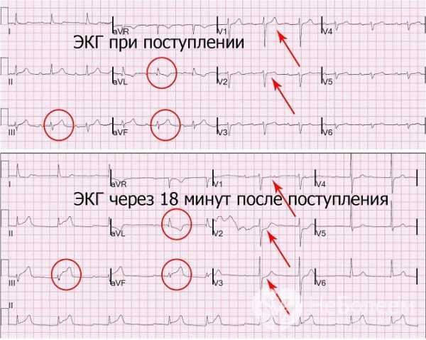 Инфаркт миокарда на пленке. Обширный инфаркт: причины, проявления, как лечить, реабилитация, прогноз