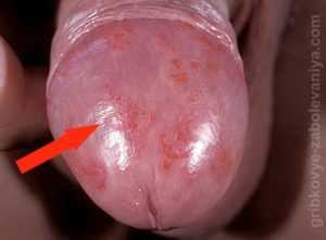 Инфекция на кончике пениса